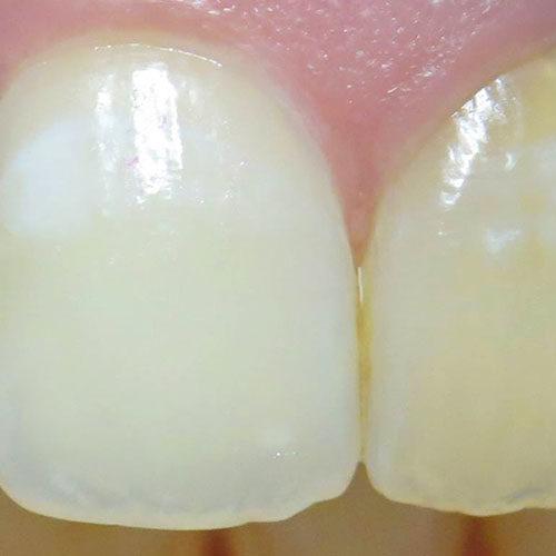 λεύκανση απονευρωμένου δοντιού