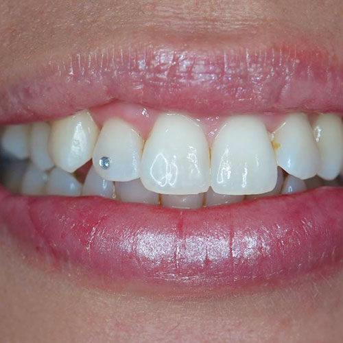 οδοντικό στρας