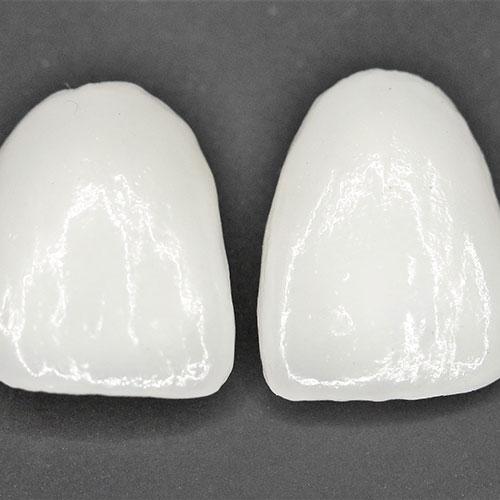 όψεις δοντιών