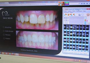 Επίδειξη περιστατικών με φωτογραφίες πριν & μετά τη θεραπεία