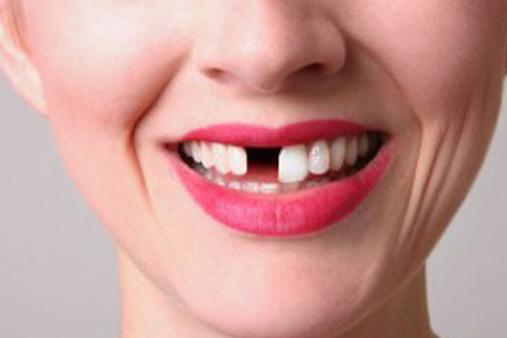 αντιμετώπιση σπασμένων δοντιών
